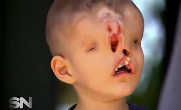 facial deformation in womb