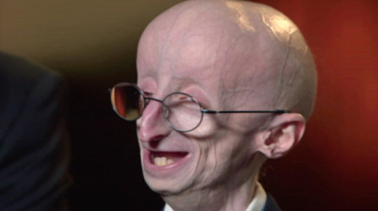 With Few Days to Live, The Real 'Benjamin Button' Gave ...