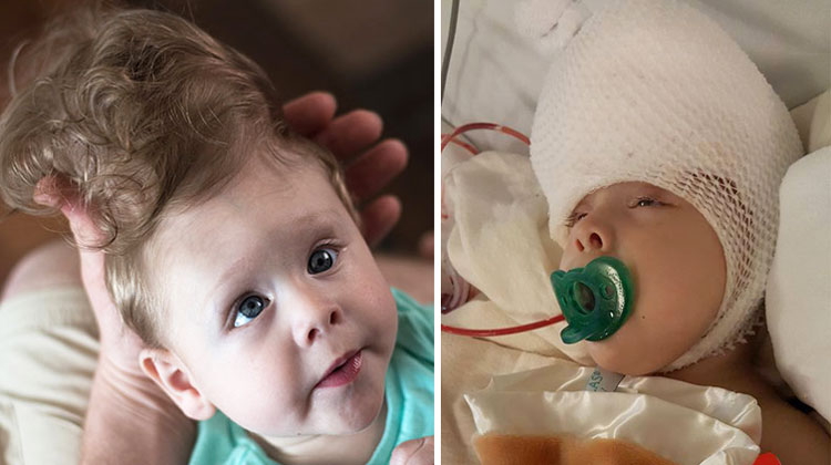 baby with brain outside of skull goes through surgery