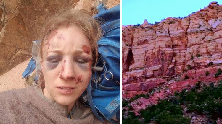 nurse survives fall on hike