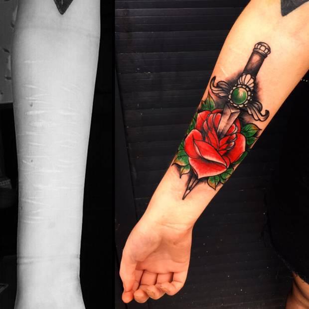 Tattoo Artist Helps Cover Teen's Self-Harm Scars