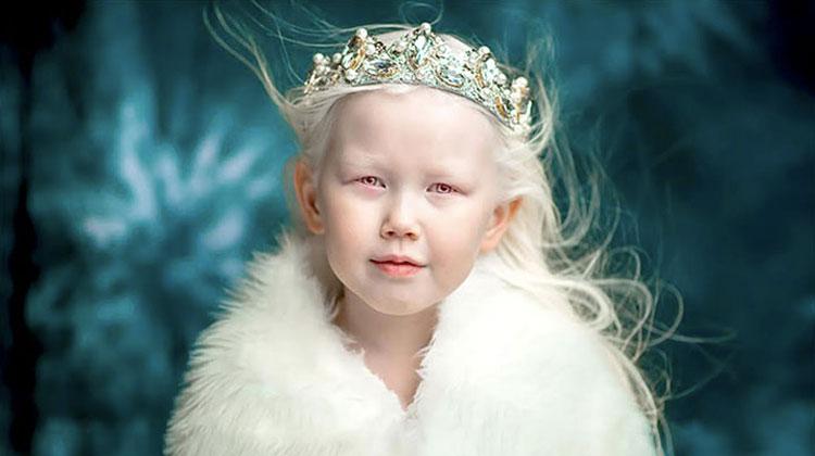 albino girl in fur and crown