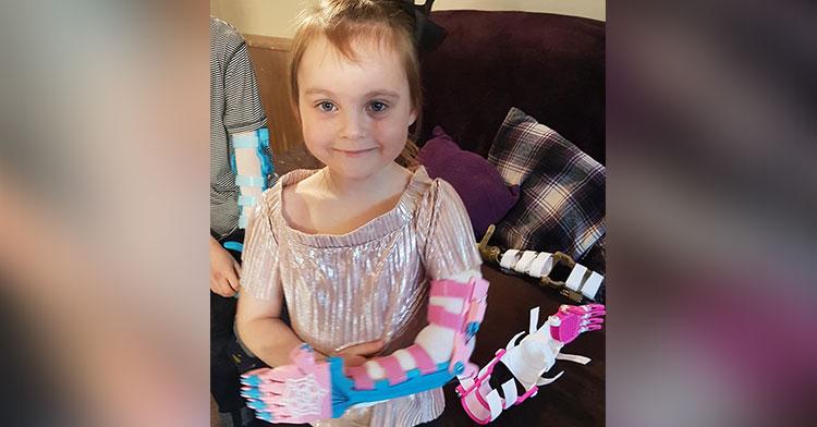 keira prosthetic arm