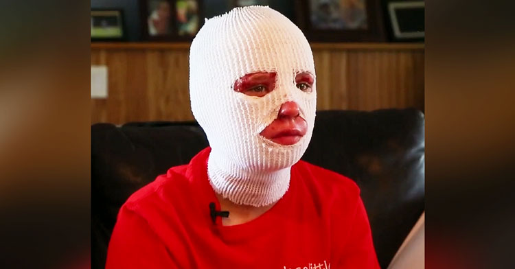 girl with bandages on face