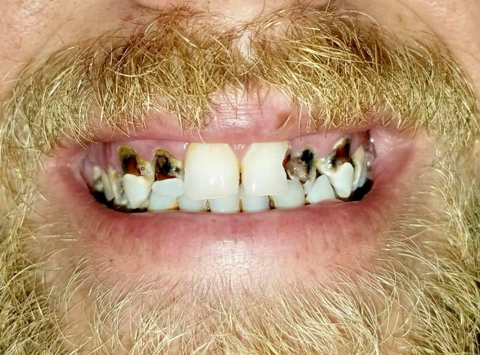 dillon moore teeth