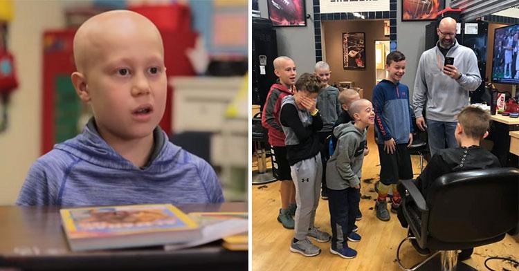 luke nelson alopecia