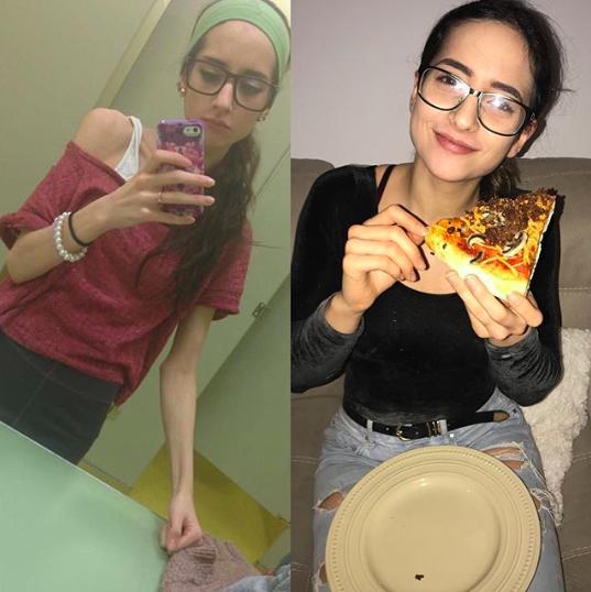 sarah anorexia