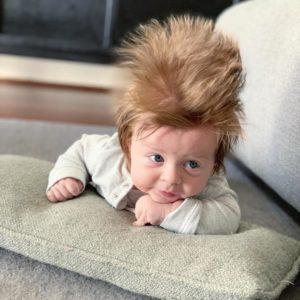 boston's crazy hair