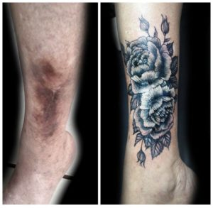 tattoo covers scar