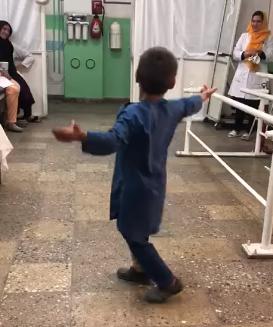 ahmad dance prosthetic leg
