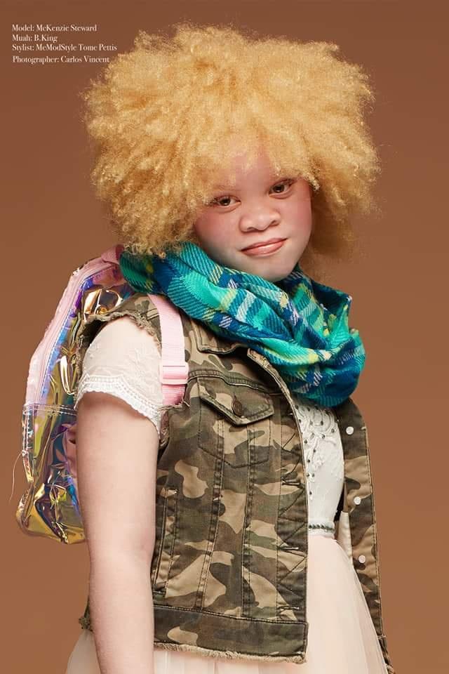 Girl Bullied For Albino Skin Gets Love Letters From 400+ Strangers.