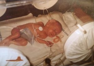 baby peder cerebral palsy