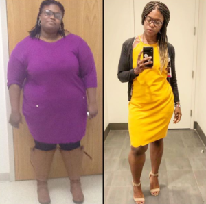 liz before after weight loss