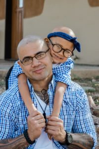 father daughter alopecia photo
