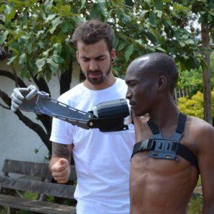 prosthetic arm recipient