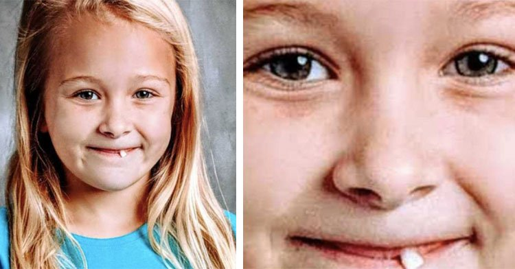 little girl sticking loose tooth out in school photo