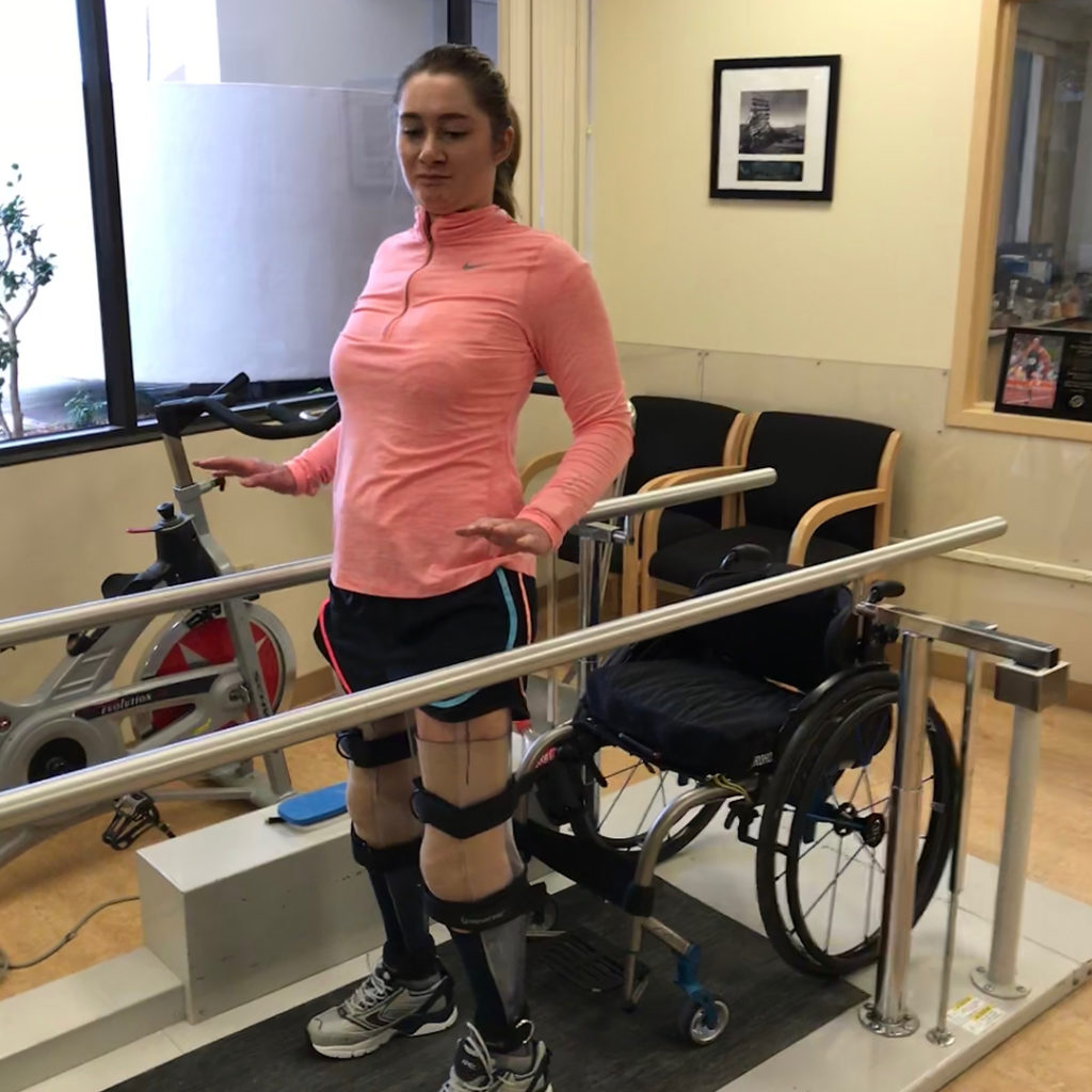 woman with prosthetic legs at physical therapy