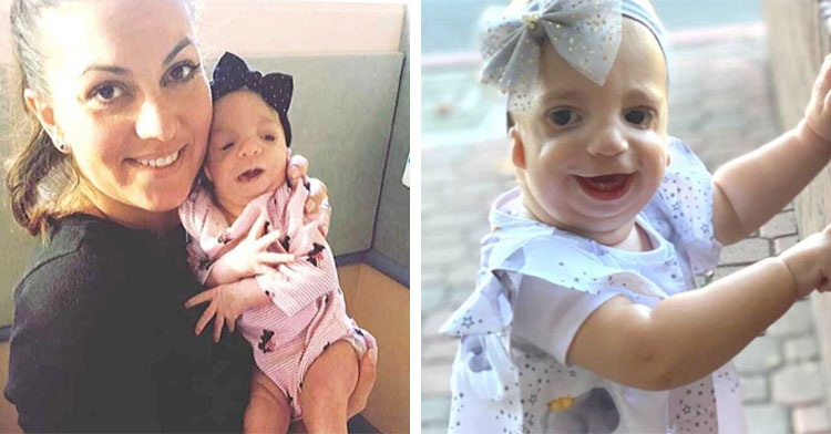 mom holding baby next to toddler with treacher collins syndrome