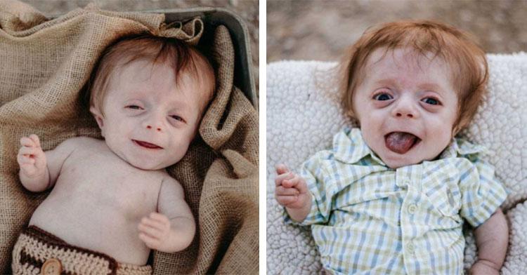 baby with brittle bone disease
