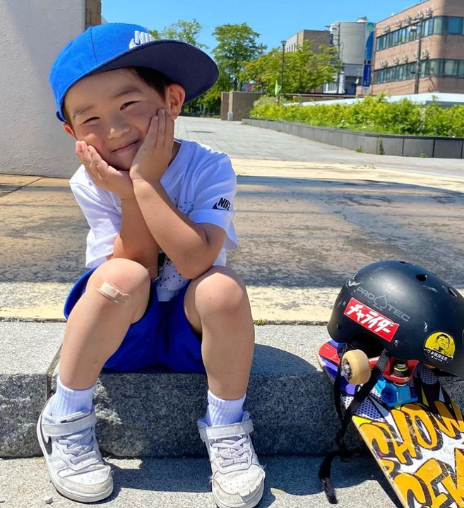 4 year old boy with a band aid on his knee smiling while sitting on a step outside next to a skateboard and a helmet